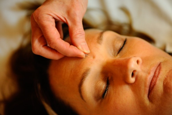Austin Acupuncture Botox Alternative Aculift Moira McCarthy Acupunturist Whole Body Health3